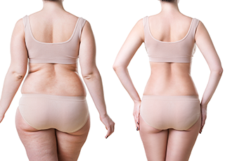 Cool Restore Fat Reduction